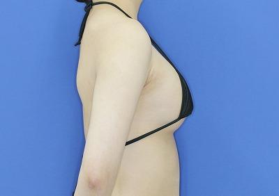 新宿ラクル美容外科クリニック 山本厚志 「ピュアグラフト脂肪注入豊胸」 手術直後 3月21日