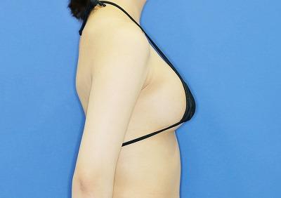 新宿ラクル美容外科クリニック 山本厚志 「ピュアグラフト脂肪注入豊胸」 手術後1週間目 3月21日