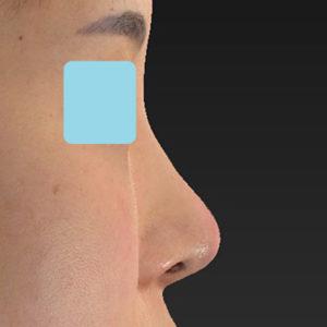 新宿ラクル美容外科クリニック 山本厚志 「オステオポア」「鼻尖縮小(close法)」 手術後3ヶ月目 5月19日
