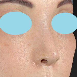 新宿ラクル美容外科クリニック 山本厚志 「小鼻縮小+α法」 手術後3ヶ月目 6月11日