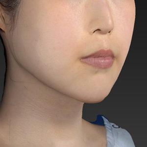 新宿ラクル美容外科クリニック 山本厚志 「アゴ プロテーゼ」 手術後3ヶ月目 5月6日