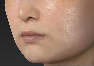 新宿ラクル美容外科クリニック 山本厚志 「人中短縮術(リップリフト)」 手術後6ヶ月目 7月28日