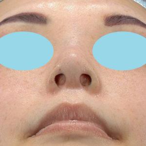 新宿ラクル美容外科クリニック 山本厚志 「小鼻縮小+α法」 手術後2ヶ月目 4月29日