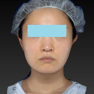 新宿ラクル美容外科クリニック 山本厚志 「テスリフト ソフト(TESSLIFT SOFT)」 手術前 5月3日