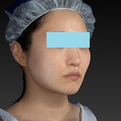 新宿ラクル美容外科クリニック 山本厚志 「テスリフト ソフト(TESSLIFT SOFT)」 手術後1ヶ月目 5月15日