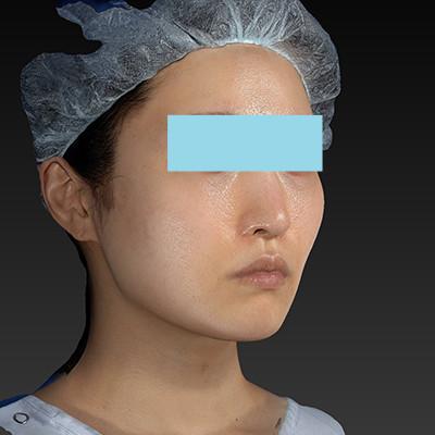 新宿ラクル美容外科クリニック 山本厚志 「テスリフト ソフト(TESSLIFT SOFT)」 手術後2ヶ月目 6月23日