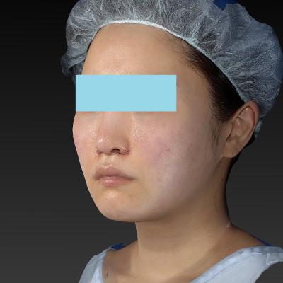 新宿ラクル美容外科クリニック 山本厚志 「テスリフト ソフト(TESSLIFT SOFT)」 手術直後 5月3日