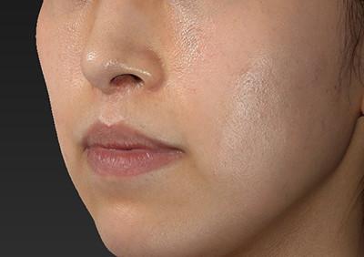 新宿ラクル美容外科クリニック 山本厚志 「人中短縮術(リップリフト)」 手術後12ヶ月目 10月16日