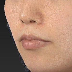 新宿ラクル美容外科クリニック 山本厚志 「口角挙上(スマイルリップ)+ 人中短縮術(リップリフト)」 手術後6ヶ月目 8月18日