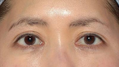 新宿ラクル美容外科クリニック 山本厚志 眉下切開法 手術前 3月1日