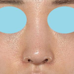 新宿ラクル美容外科クリニック 山本厚志 「小鼻縮小+α法」 手術後1ヶ月目 6月19日