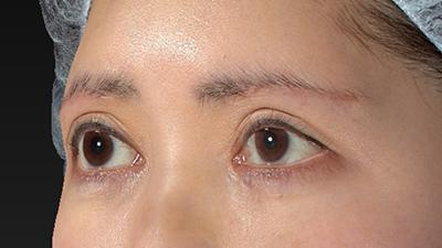 新宿ラクル美容外科クリニック 山本厚志 眉下切開法 手術後1ヶ月目 3月1日
