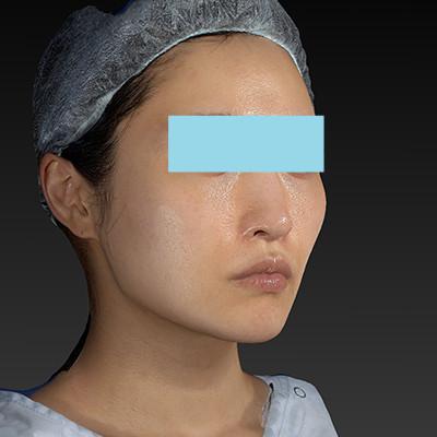 新宿ラクル美容外科クリニック 山本厚志 「テスリフト ソフト(TESSLIFT SOFT)」 手術後6ヶ月目 10月15日