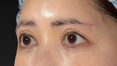 新宿ラクル美容外科クリニック 山本厚志 眉下切開法 手術後6ヶ月目 7月20日