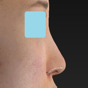 新宿ラクル美容外科クリニック 山本厚志 「小鼻縮小+α法」 手術直後 6月19日