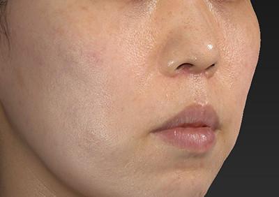 新宿ラクル美容外科クリニック 山本厚志 「人中短縮術(リップリフト)」 手術後1ヶ月目 6月28日