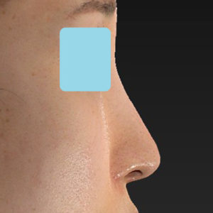 新宿ラクル美容外科クリニック 山本厚志 「小鼻縮小+α法」 手術後2ヶ月目 6月29日