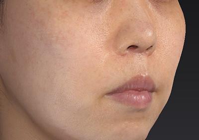 新宿ラクル美容外科クリニック 山本厚志 「人中短縮術(リップリフト)」 手術後2ヶ月目 6月28日