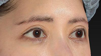新宿ラクル美容外科クリニック 山本厚志 眉下切開法 手術後2ヶ月目 3月27日