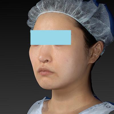 新宿ラクル美容外科クリニック 山本厚志 「テスリフト ソフト(TESSLIFT SOFT)」 手術後3ヶ月目 10月15日