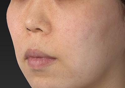新宿ラクル美容外科クリニック 山本厚志 「人中短縮術(リップリフト)」 手術前 6月28日