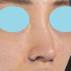 新宿ラクル美容外科クリニック 山本厚志 「小鼻縮小+α法」 デザイン 6月19日