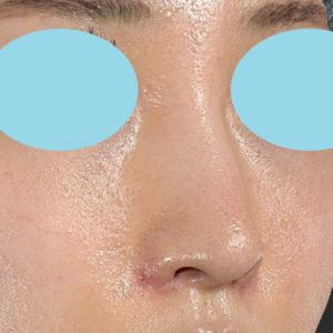 新宿ラクル美容外科クリニック 山本厚志 「小鼻縮小+α法」 手術後1週間目 6月19日