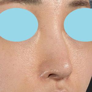 新宿ラクル美容外科クリニック 山本厚志 「小鼻縮小+α法」 手術後3ヶ月目 9月13日