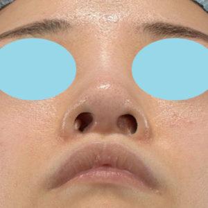 新宿ラクル美容外科クリニック 山本厚志 「小鼻縮小+α法」 手術前 6月19日