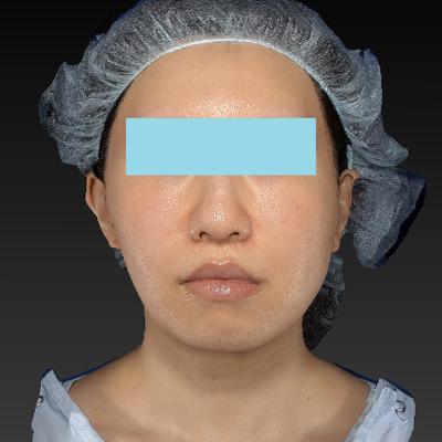 新宿ラクル美容外科クリニック 山本厚志 「テスリフト ソフト(TESSLIFT SOFT)」 手術後2ヶ月目 7月11日
