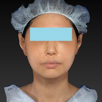 新宿ラクル美容外科クリニック 山本厚志 「テスリフト ソフト(TESSLIFT SOFT)」 手術後3ヶ月目 8月30日