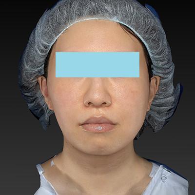 新宿ラクル美容外科クリニック 山本厚志 「テスリフト ソフト(TESSLIFT SOFT)」 手術後3ヶ月目 8月15日