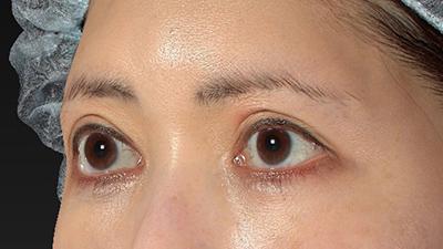 新宿ラクル美容外科クリニック 山本厚志 眉下切開法 手術後12ヶ月目 7月20日