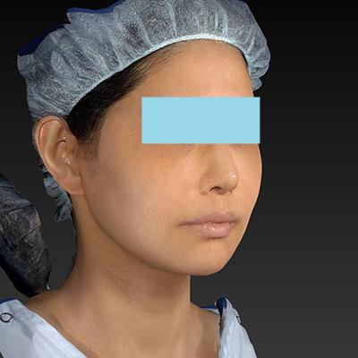 新宿ラクル美容外科クリニック 山本厚志 「テスリフト ソフト(TESSLIFT SOFT)」 手術後2ヶ月目 7月13日