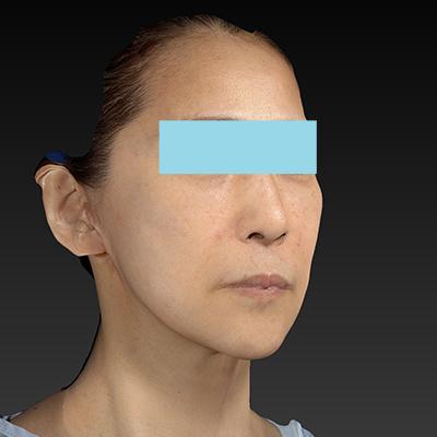 新宿ラクル美容外科クリニック 山本厚志 ナチュラルフェイスリフト 手術後6ヶ月目 7月8日