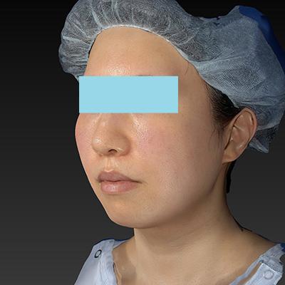 新宿ラクル美容外科クリニック 山本厚志 「テスリフト ソフト(TESSLIFT SOFT)」 手術後1ヶ月目 7月11日