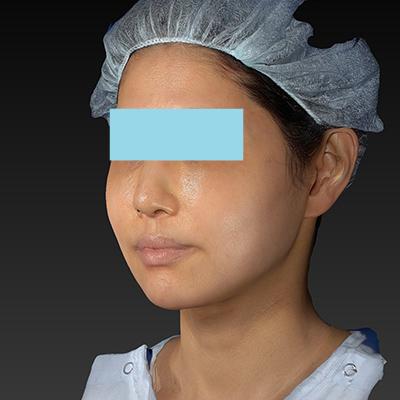 新宿ラクル美容外科クリニック 山本厚志 「テスリフト ソフト(TESSLIFT SOFT)」 手術後6ヶ月目 1月6日