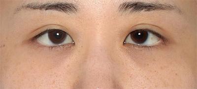 新宿ラクル美容外科クリニック 山本厚志 下眼瞼下制術(グラマラスライン形成術(皮膚切開法))+目尻切開 手術後2ヶ月目 10月23日