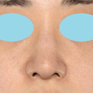 「耳介軟骨移植+鼻尖縮小(close法)+小鼻縮小+α」 新宿ラクル美容外科クリニック 20代女性 手術前 9月19日