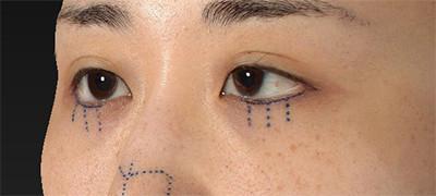 新宿ラクル美容外科クリニック 山本厚志 下眼瞼下制術(グラマラスライン形成術(皮膚切開法))+目尻切開 デザイン 9月15日