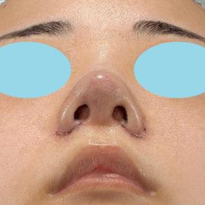 「耳介軟骨移植+鼻尖縮小(close法)+小鼻縮小+α」 新宿ラクル美容外科クリニック 20代女性 手術直後 9月19日