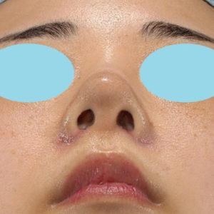 「耳介軟骨移植+鼻尖縮小(close法)+小鼻縮小+α」 新宿ラクル美容外科クリニック 20代女性 手術後1週間目 9月19日