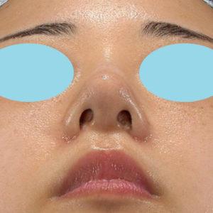 「耳介軟骨移植+鼻尖縮小(close法)+小鼻縮小+α」 新宿ラクル美容外科クリニック 20代女性 手術後1ヶ月目 9月19日