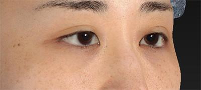 新宿ラクル美容外科クリニック 山本厚志 下眼瞼下制術(グラマラスライン形成術(皮膚切開法))+目尻切開 手術前 9月15日
