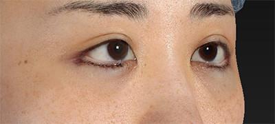 新宿ラクル美容外科クリニック 山本厚志 下眼瞼下制術(グラマラスライン形成術(皮膚切開法))+目尻切開 手術直後 9月15日