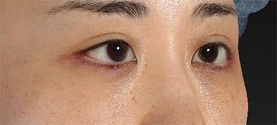 新宿ラクル美容外科クリニック 山本厚志 下眼瞼下制術(グラマラスライン形成術(皮膚切開法))+目尻切開 手術後1週間目 9月15日