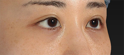 新宿ラクル美容外科クリニック 山本厚志 下眼瞼下制術(グラマラスライン形成術(皮膚切開法))+目尻切開 手術後1ヶ月目 9月15日