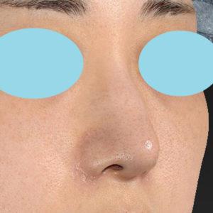 「耳介軟骨移植+鼻尖縮小(close法)+小鼻縮小+α」 新宿ラクル美容外科クリニック 20代女性 手術後2ヶ月目 11月11日
