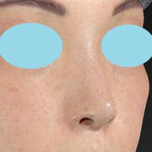新宿ラクル美容外科クリニック 山本厚志 「小鼻縮小+α法」 手術後6ヶ月目 9月5日