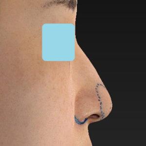 「耳介軟骨移植+鼻尖縮小(close法)+小鼻縮小+α」 新宿ラクル美容外科クリニック 20代女性 デザイン 9月19日